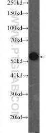 25659-1-AP - PKM2
