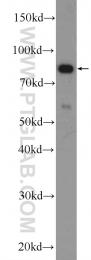 16792-1-AP - PLCD3