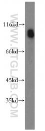 17462-1-AP - Plasminogen / PLG
