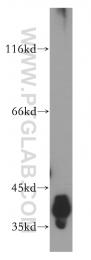 18003-1-AP - DNA polymerase beta