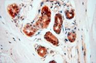 14873-1-AP - DNA polymerase mu
