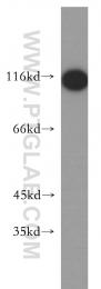 18590-1-AP - PPP1R13L