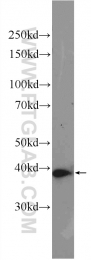 10290-1-AP - AMPK gamma-1 chain / AMPKg