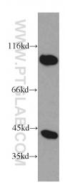 20358-1-AP - PRKAR1A