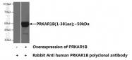 17991-1-AP - PRKAR1B