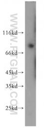 14364-1-AP - PRKCG