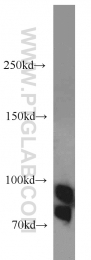 12148-1-AP - Glucosidase 2 subunit beta