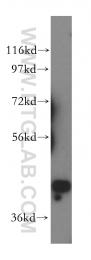 15395-1-AP - PRMT6 / HRMT1L6