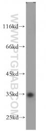 18813-1-AP - PSKH2