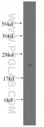 11493-1-AP - PTPMT1