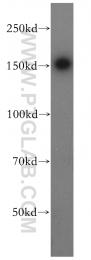 18053-1-AP - PTPN14 / PEZ