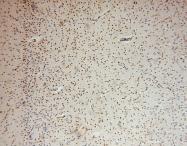 15851-1-AP - Glycogen phosphorylase liver form