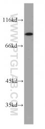 55429-1-AP - Glycogen phosphorylase liver form