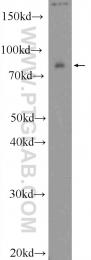 25843-1-AP - RAB11FIP3