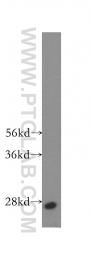 11025-1-AP - RAB33A / RABS10