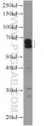 14625-1-AP - RABEP2