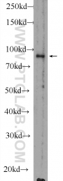 51038-1-AP - RanBP9 / Importin-9