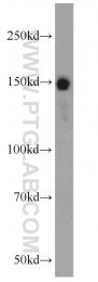 22140-1-AP - RASAL2 / NGAP