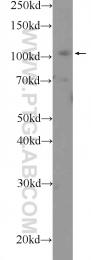 25628-1-AP - Retinoblastoma-associated protein / RB1