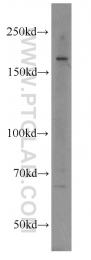 10043-2-AP - RB1CC1