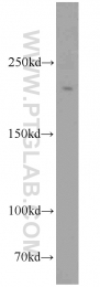 11882-1-AP - RBBP6 / RBQ1