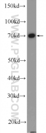 26105-1-AP - Radixin / RDX