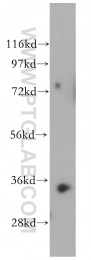 15003-1-AP - Renalase