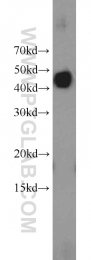 11590-1-AP - RGS5