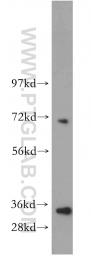 15819-1-AP - Galectin-9