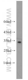 12534-1-AP - RND3 / ARHE