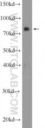 24988-1-AP - RNF219