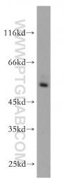13205-1-AP - ROR-gamma / RORC