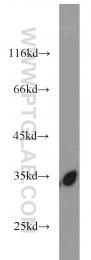 15198-1-AP - RPS3
