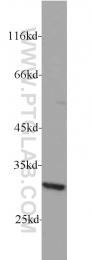 17296-1-AP - RPS4Y1 / RPS4Y