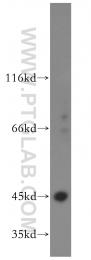 11661-1-AP - RRM2 / RR2