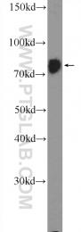 25918-1-AP - RRN3