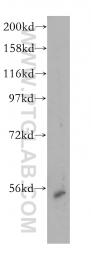 14896-1-AP - NNP1