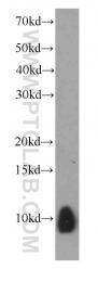 66098-1-Ig - S100A6 / Calcyclin