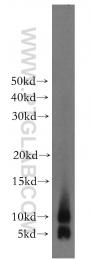 15792-1-AP - S100A8 / Calgranulin-A / MRP8