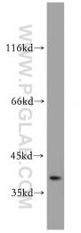 10229-1-AP - SAE1 / AOS1