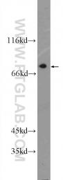 55488-1-AP - SARM1