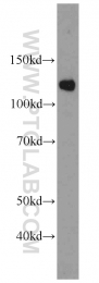 22675-1-AP - SART1
