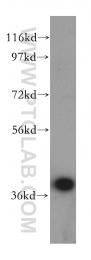 15327-1-AP - SCAMP1