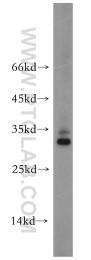 10761-1-AP - Secretogranin-5 (SCG5)