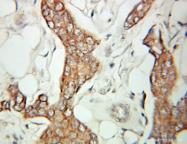 10667-1-AP - Selenocysteine lyase (SCLY)