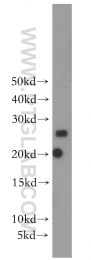 13612-1-AP - SCN2B