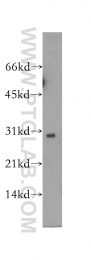 12614-1-AP - SCO1 / SCOD1