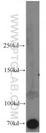10886-1-AP - Syndecan-3 (SDC3)