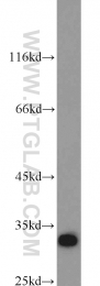 22399-1-AP - Syntenin-1 / SDCBP