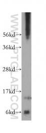 14575-1-AP - SDHC